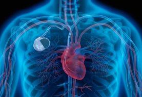 Quando gli hacker attaccano pacemaker, protesi e apparecchi medici