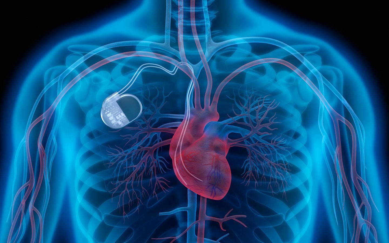 quando il pacemaker si